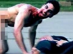 Zombie apocalyps een stap dichterbij met drug genaamd flakka?